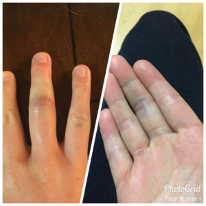 sprained finger